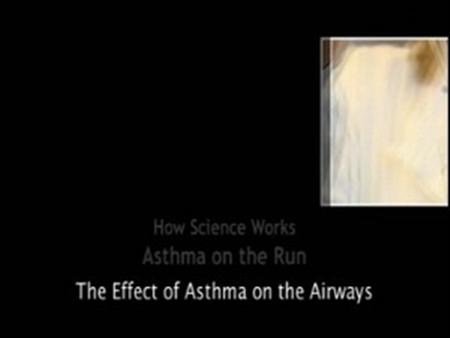 How Science Works – Asthma on the Run: The Effect of Asthma on the Airways